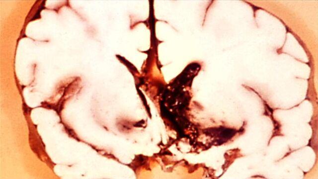 File:Sf3-biothreat.jpg