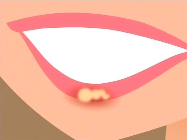 File:Cold Sore.png