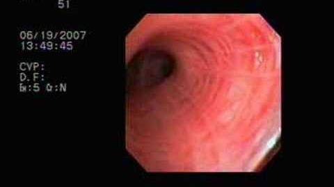Lung Surgery 1 Bronchoscopy