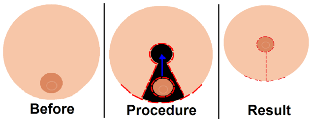 File:Breastreduction.png