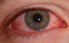 File:Bloodshot eye.png