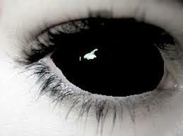 File:Black Eye.jpg