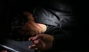 308-Derrick slashed face