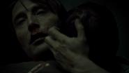 Hannibal S02E13 Mizumono13