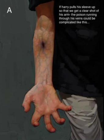 File:Harry's wound because of the bite of Slytherin's Basilisk 02.JPG