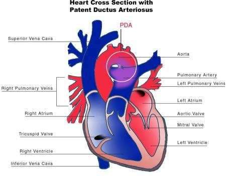 File:Patent ductus arteriosus.jpg