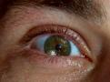 ملف:M-eye.jpg