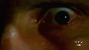 File:3x20eye.png