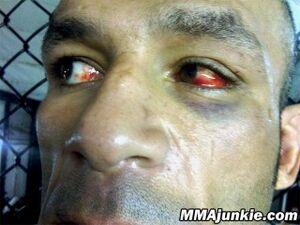 Medium mostapha-al-turk-picture-injured-eye-big