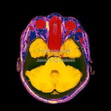 File:MRI Brain-Scan.jpg