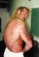DDP Whipped my ASS with Savage's Crutches