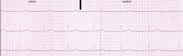 File:EKG.jpg