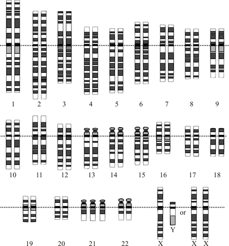 File:Down Syndrome Karyotype.png