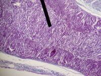 Adrenal gland (medulla)