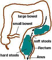 Bowel-overflow-sheme2
