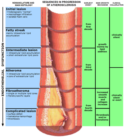 File:Endo dysfunction Athero.PNG