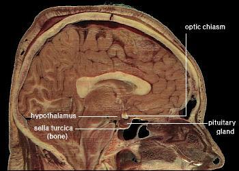 File:LocationOfHypothalamus.jpg
