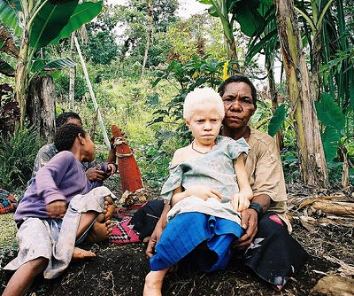 File:Albinistic girl papua new guinea.jpg