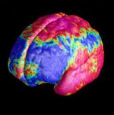 File:Petscan Brain.jpg