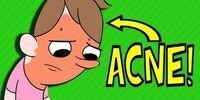 Acne Cream (Pubertina)
