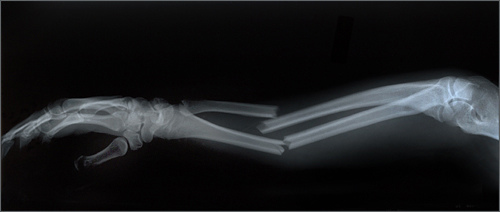 Xray Broken Arm User blog:Golde...