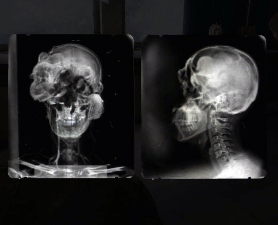 Fungal X Rays The Last Of Us Wiki Fandom Powered By Wikia