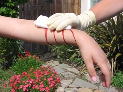 File:Bleeding011 400x300.jpg