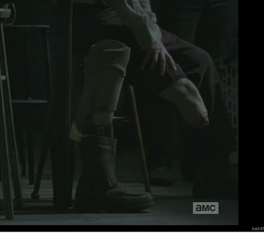 File:Prosthetic leg .jpg