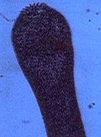 File:Tapeworm scolex.jpg