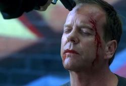 Jack Bauer near death