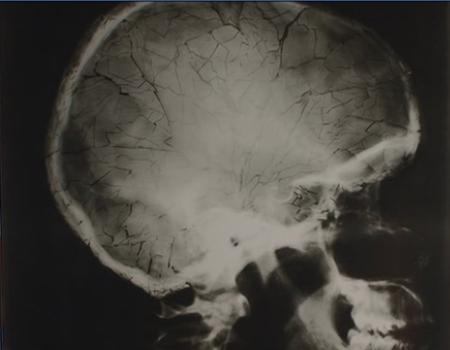 File:Adam Kensington's shattered skull.jpg