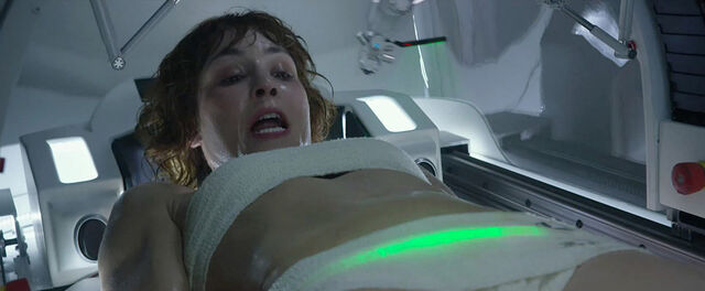 File:Shaw C-section.jpg