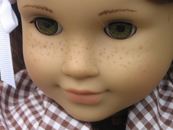 File:Freckling.jpg
