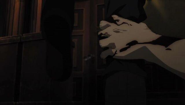 File:Bloody hand.JPG