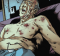 Carl Knighton, dead with hives.png