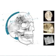 AC4 Crystal Skull