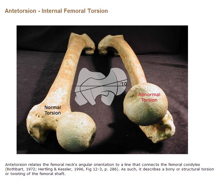 Antetorsion - photos of femoral neck's angular orientation