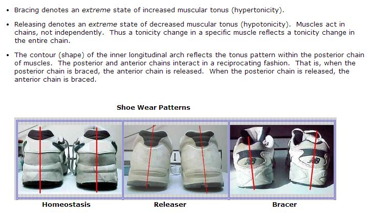 Bracing Patterns Info with Pictures Shoes