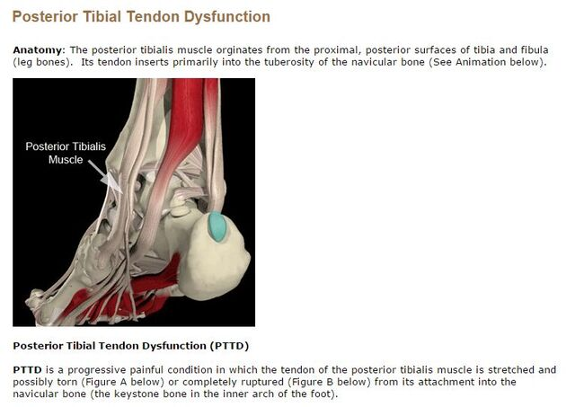 File:Anatomy and Definition PTTD.jpg
