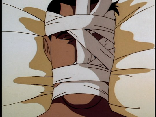 File:TF P1 63 - Harvey with bandages.jpg