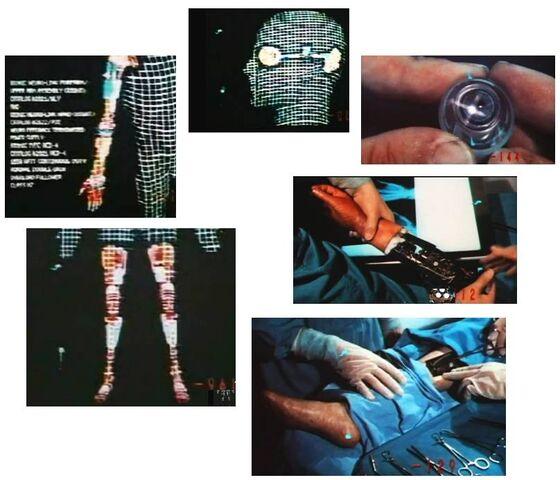 File:Bionic operation Steve.jpg