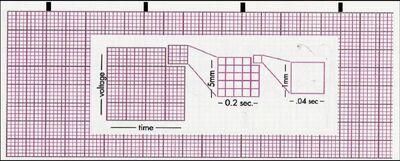 Chart strip