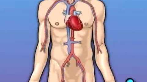 PreOp® Coronary Artery Bypass CABG) Patient Education