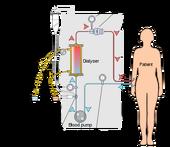 400px-Hemodialysis-en svg