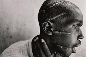 File:Hutu man mutilated.jpg