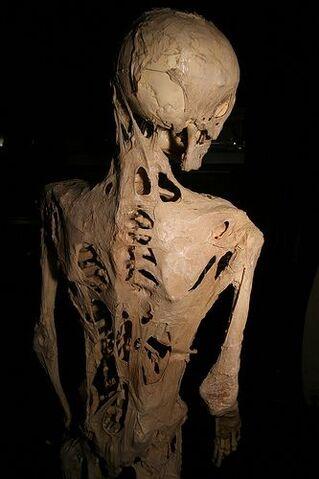 File:Fibrodysplasia ossificans progressiva.jpg