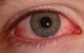 File:Bloodshot eye.png