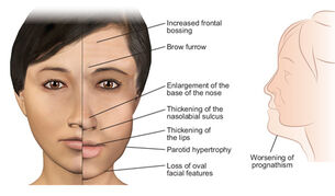 Acromegaly page facial features