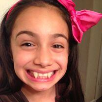 McKenzie fake vampire teeth