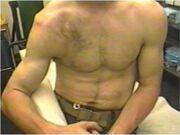 Dislocated-shoulder